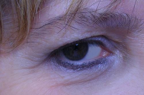 eliminazione di capillari all'interno dell'occhio