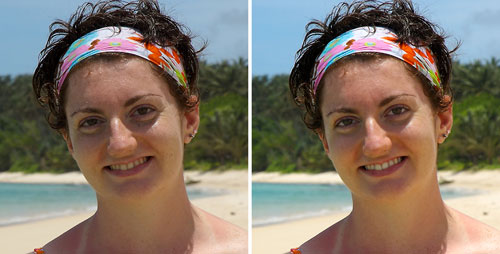 La ragazza prima e dopo la cura
