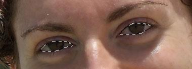 Selezione dell'area degli occhi  Deve essere il più precisa possibile