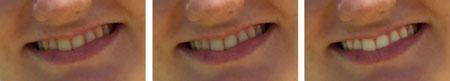 Tre fasi della lavorazione per sbiancare i denti