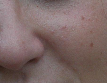 Immagine iniziale con la pelle ricca di difetti