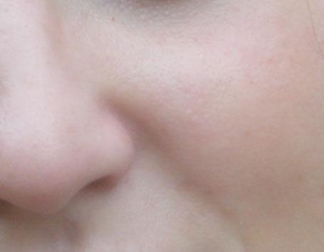 La pelle dopo l'applicazione del pennello correttivo