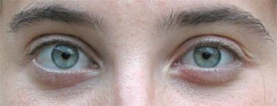 Dettaglio degli occhi dopo le modifiche dei livelli
