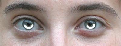 Curve bianche nella parte inferiore degli occhi